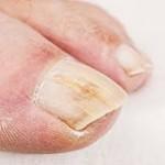 Problemi cutanei ai piedi Dott. Riccio