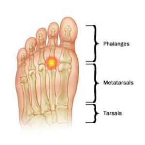metatarsalgia-sanitari-ortopedia-europa